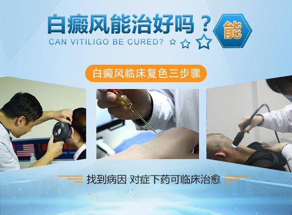 治疗白癜风可以使用青核桃皮
